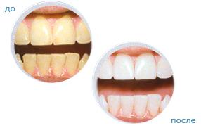 естественное отбеливание зубов